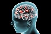 روند بیماری آلزایمر قابلیت این را دارد که به سادگی معکوس شود