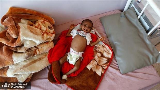 اوضاع وخیم کودکان یمنی