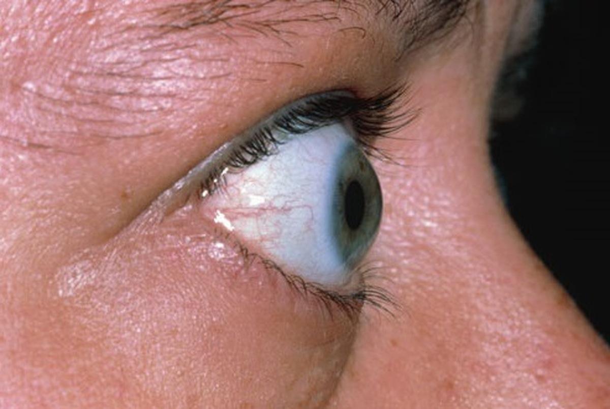 تیروئید چشمی چیست و چه علائمی دارد؟