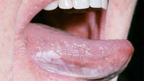 ۷ دلیل ایجاد لکههای تیره بر روی زبان