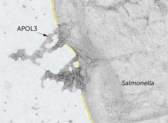 سلولهای انسان مادهای میسازند میکروب ها را از بین میبرد