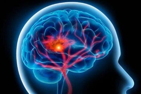 چگونه میتوانید تشخیص دهید که قبلا سکته مغزی خاموش داشتهاید؟