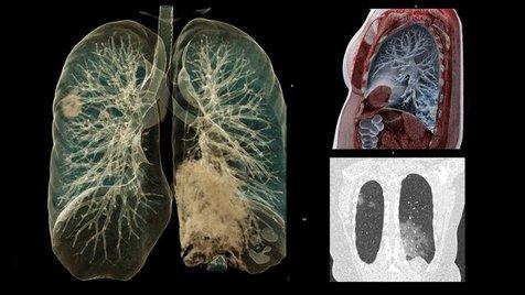 ماده ای جدید در ریه بیماران کرونایی شناسایی شد