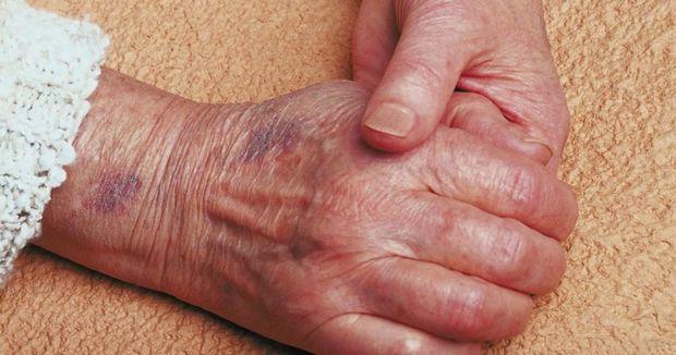 آخرین وضعیت سالمند رها شده در اهواز