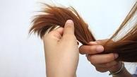 کی برای ریزش مو باید به پزشک مراجعه کنیم؟