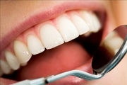 عوارض کشیدن دندان عقل