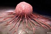 با شناخت میکروبهای بدن انسان سرطان را بهتر درک کنید