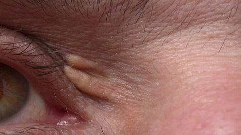 علائم اطراف چشم که از بالا بودن کلسترول خون خبر می دهد