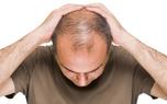 ویروس کرونا باعث ریزش مو می شود؟