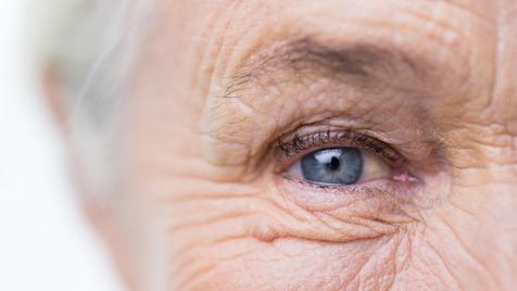 کاهش چین و چروک صورت زنان مسن با مصرف این میوه