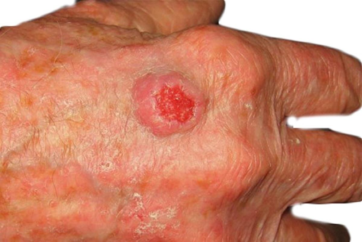 شناسایی یک جاسوس سلولی مهم در ابتلا به سرطان پوست