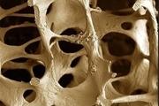 با مصرف کلسیم و ویتامین D از پوکی استخوان پیشگیری کنید