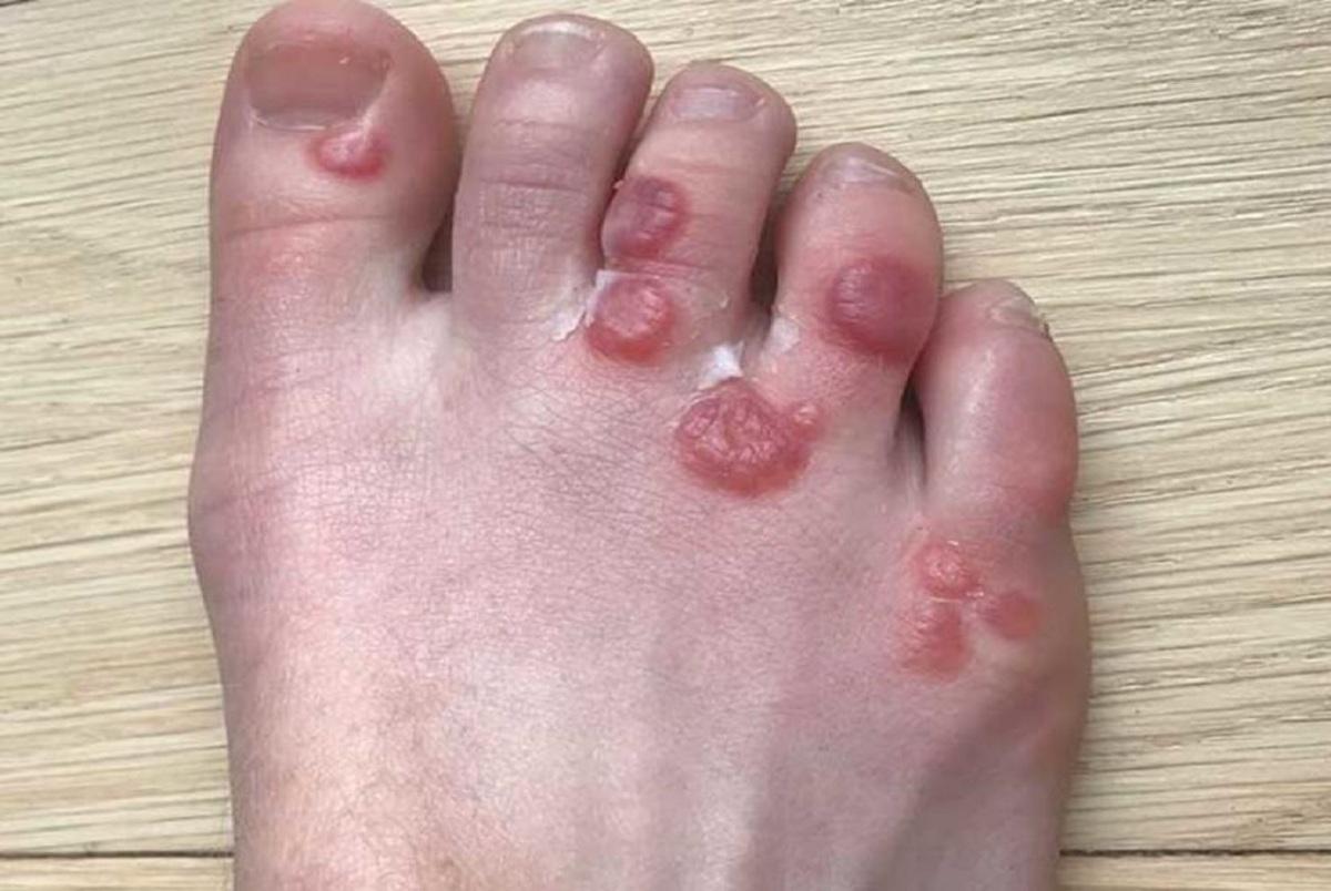 چگونه تاول خونی پا را درمان کنیم؟