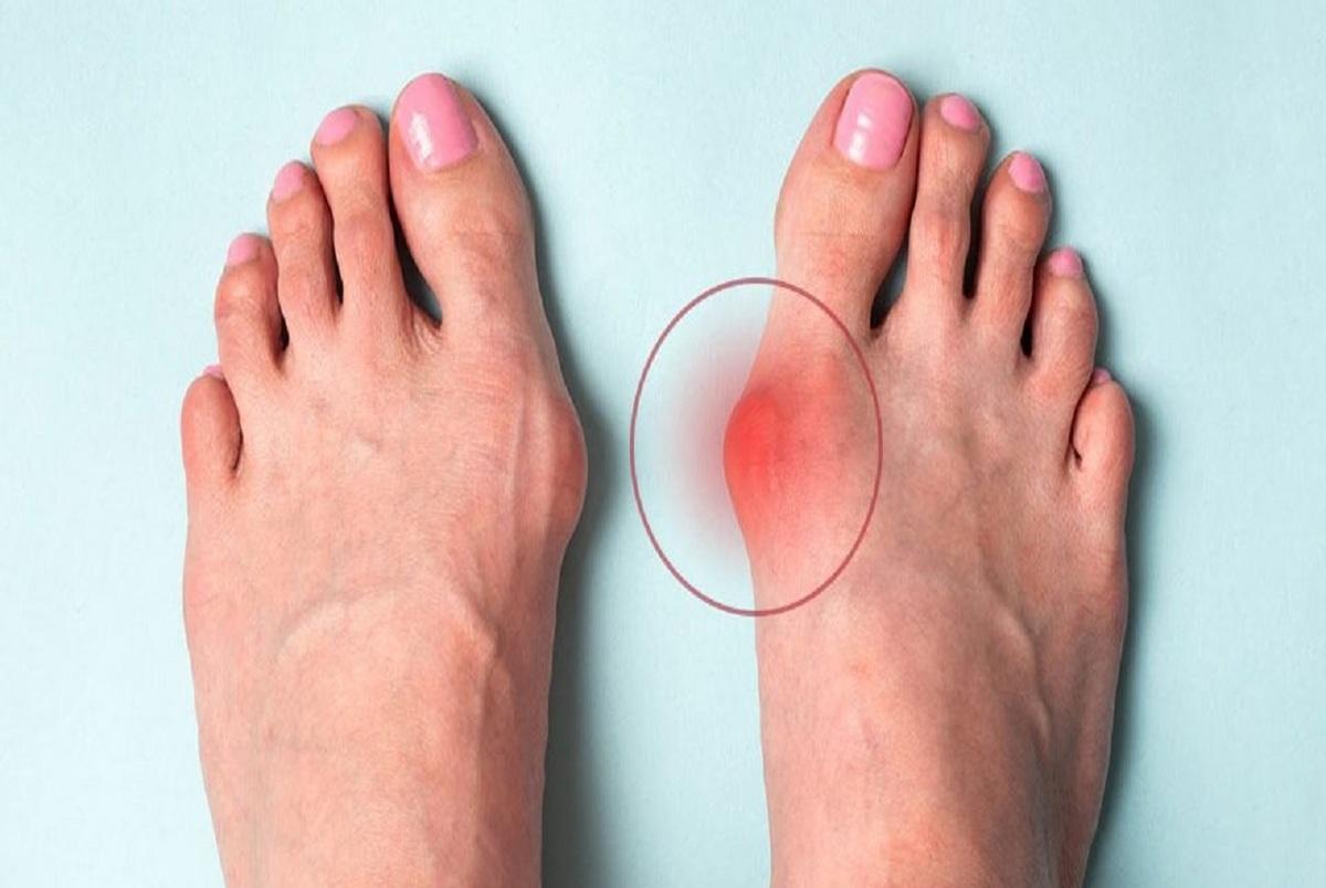چگونه انحراف شست پا را درمان کنیم؟